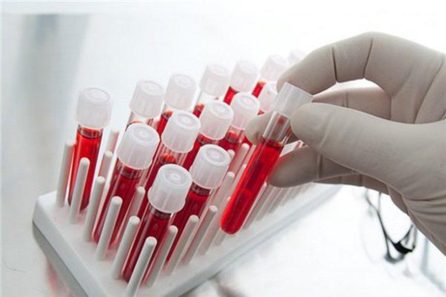 как провериться на паразитов в организме инвитро