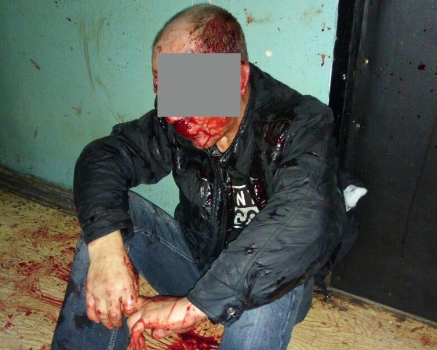 Вобщежитии Брянска уголовник зарезал женщину иранил молодого человека